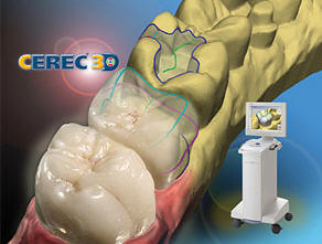 CEREC Single Visit Dental Crowns El Cajon CA