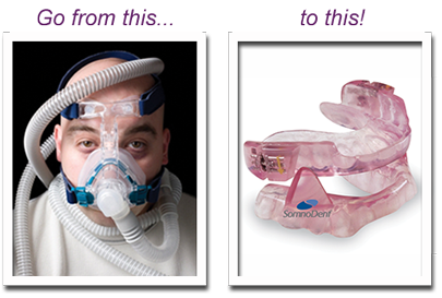 Oral Appliance Replaces CPAP for Sleep Apnea
