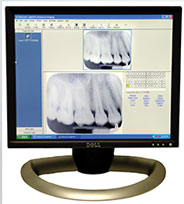 Digital Dental Xrays El Cajon CA