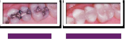 Trám răng trắng nha sĩ